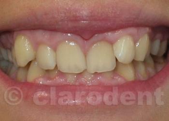Ortodontie 4