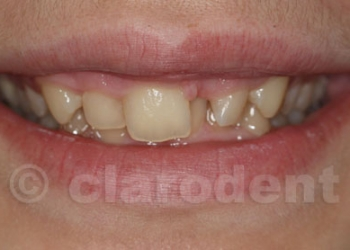 Ortodontie 7