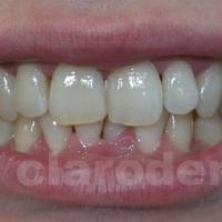 Ortodontie 5